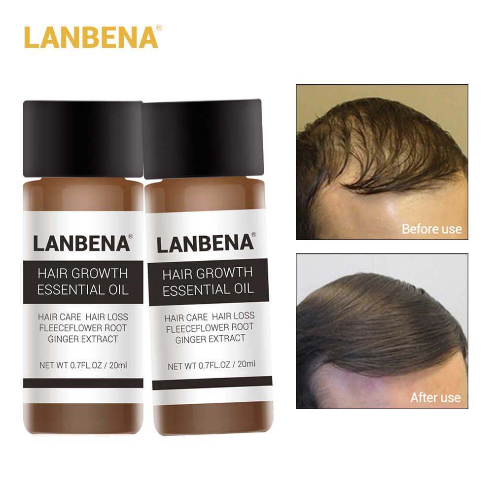 LANBENA-علاج تساقط الشعر