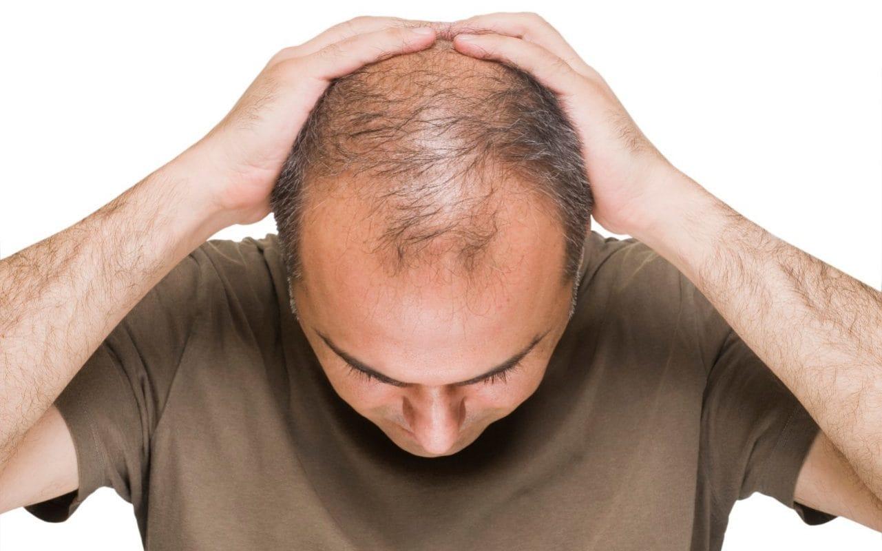 ماذا يحدث إذا إستخدمت البيوتين لعلاج تساقط الشعر لمدة 4 أسابيع ؟