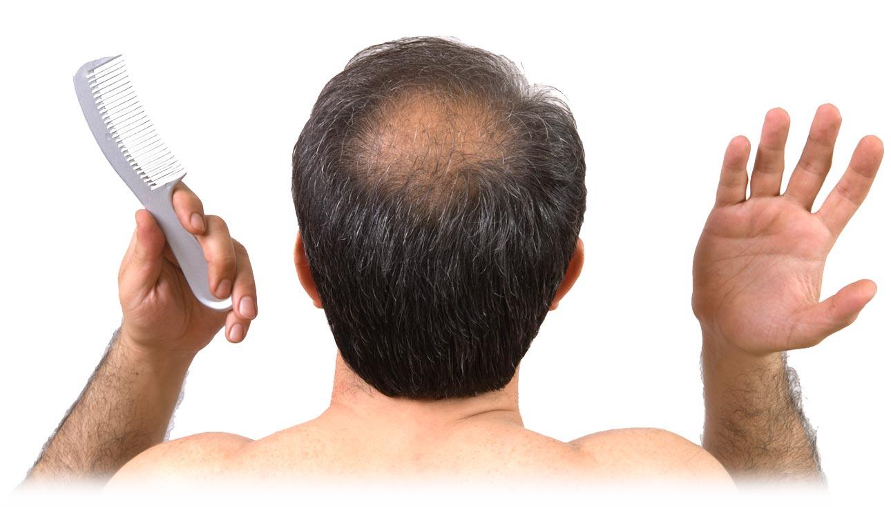 علاج الجديد Lanbena لإنبات الشعر – لكل انواع الصلع