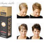 علاج-تساقط-الشعر-للمرأة