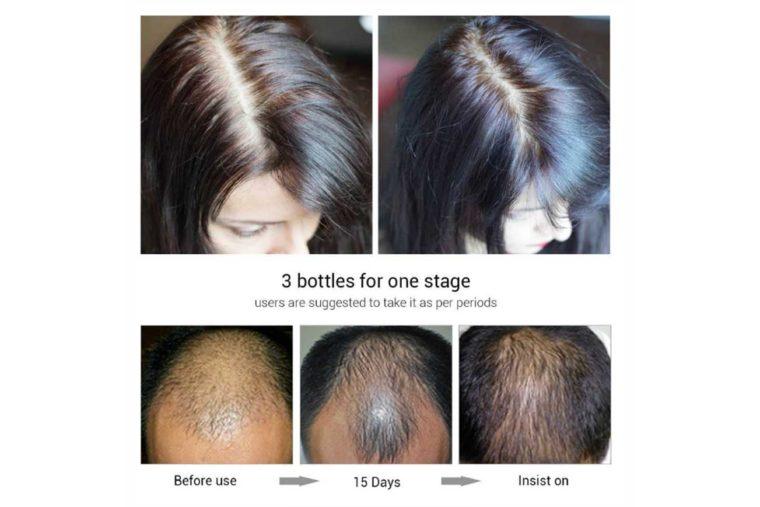 قبل-و-بعد-الاستخدام