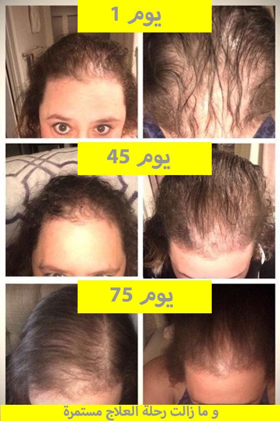 نتائج-منتج-regain-لعلاج-تساقط-الشعر-للمرأة