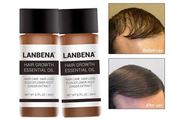 LANBENA-علاج-تساقط-الشعر